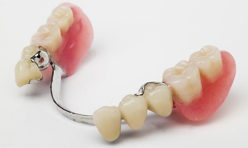 Зуб Опорный фото